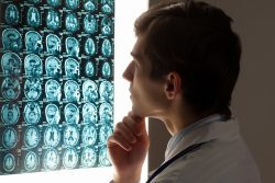 doctor looking at a brain injury x-ray