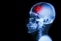 brain injury caused by an accident